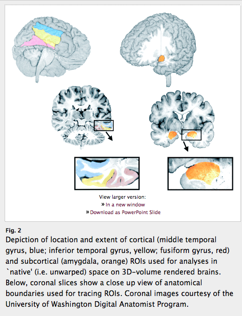 From Jounral 'Brain' article by Pierce et al  2001