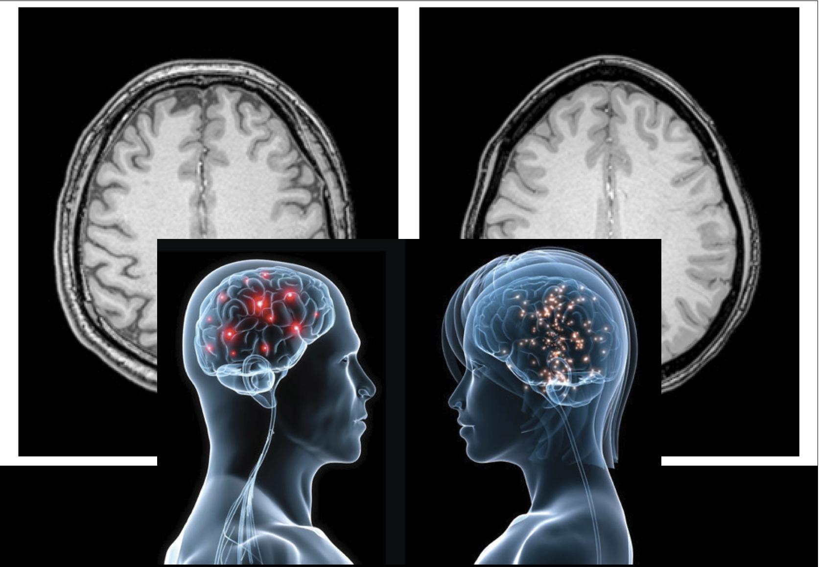 diverse brains neuroimaging in autism reveals individual